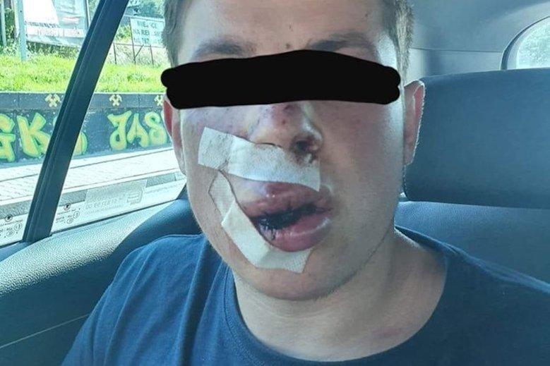 Пятеро поляков жесткого избили 19-летнего украинца